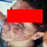 【閲覧注意】顔がパックリ割れた男性が奇跡的に生きてるがグロい・・・(動画)