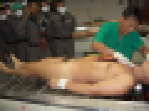 【超閲覧注意】遺体を解剖する検死の様子が最強にグロい・・・(画像)・1枚目