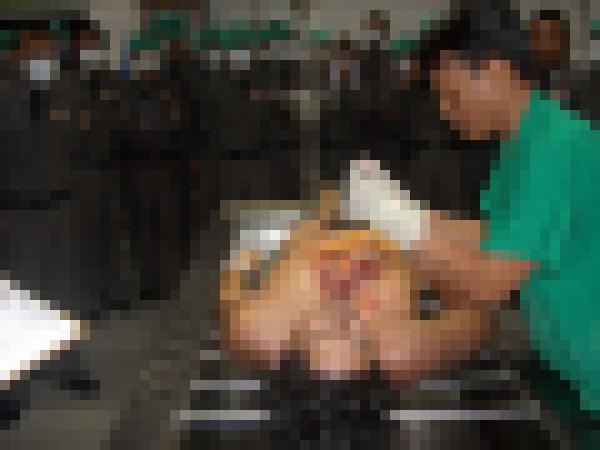 【超閲覧注意】遺体を解剖する検死の様子が最強にグロい・・・(画像)・2枚目