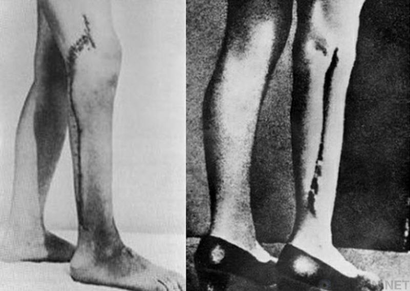 【恐怖】ナチスの強制収容所で行われていた人体実験。(画像あり)・2枚目