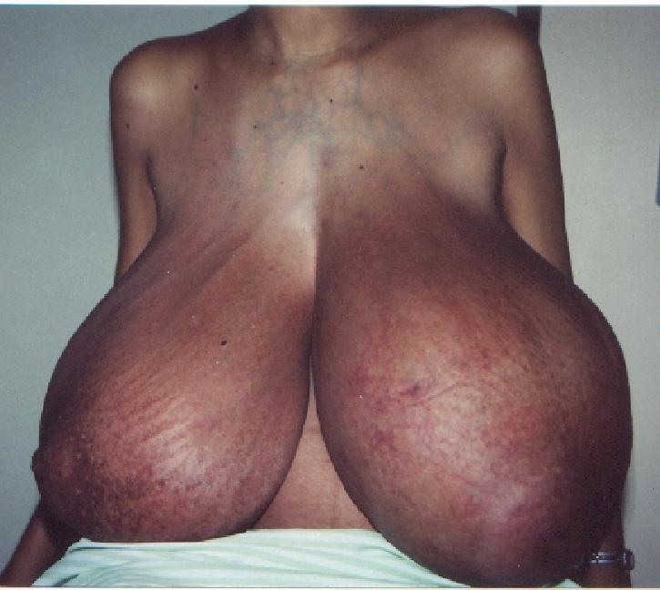 【※怪物】おっぱいが成長し続けるある種病気の女性たちの桁違いな胸をご覧ください。(画像)・2枚目