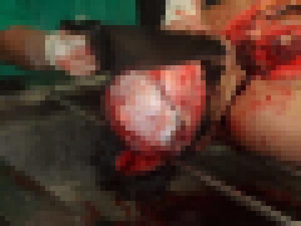 【超閲覧注意】遺体を解剖する検死の様子が最強にグロい・・・(画像)・4枚目