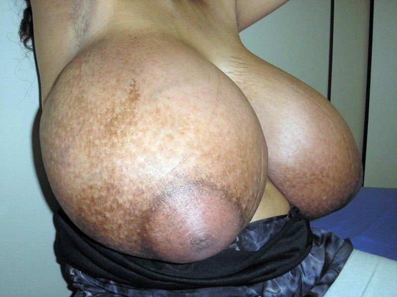 【※怪物】おっぱいが成長し続けるある種病気の女性たちの桁違いな胸をご覧ください。(画像)・4枚目