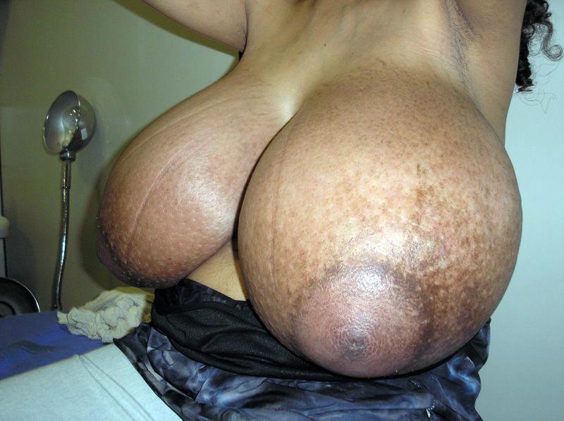【※怪物】おっぱいが成長し続けるある種病気の女性たちの桁違いな胸をご覧ください。(画像)・5枚目