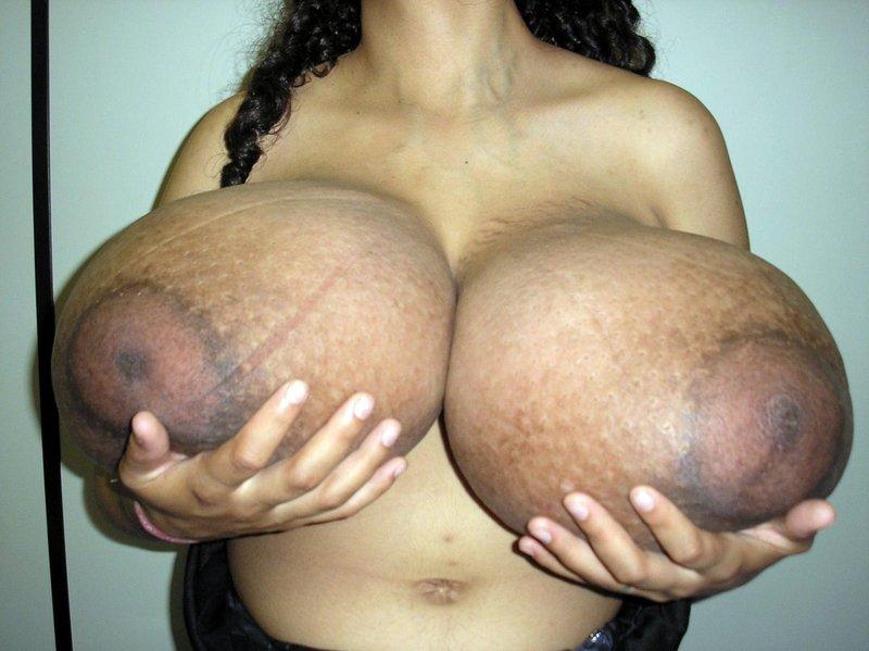 【※怪物】おっぱいが成長し続けるある種病気の女性たちの桁違いな胸をご覧ください。(画像)・6枚目