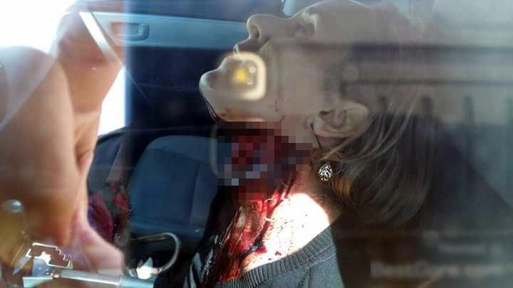 【閲覧注意】行方不明の女性、ホラー映画のような状態で発見される・・・(画像)・1枚目