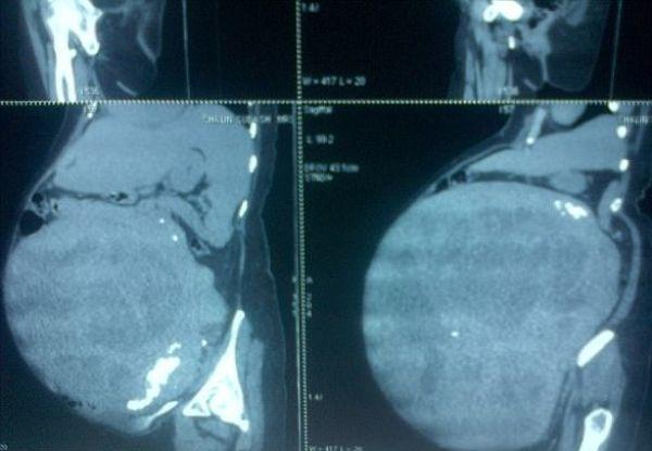 【閲覧注意】体重の半分ほどの腫瘍を宿した女性がこちら。(画像)・1枚目
