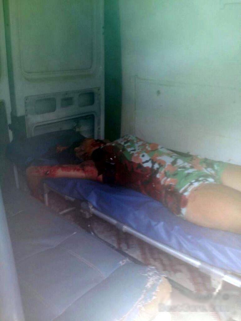 【閲覧注意】15歳の女性元カレにとんでもないところを刺されて死亡・・・(画像)・3枚目