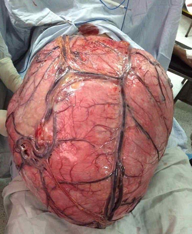 【閲覧注意】体重の半分ほどの腫瘍を宿した女性がこちら。(画像)・4枚目