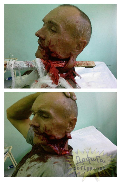 【閲覧注意】大怪我で首が落ちそうなオッサン自ら頭部を支える光景、なんかすげぇ。(画像)・1枚目
