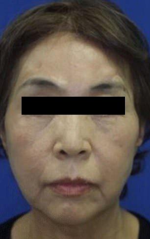【閲覧注意】紡績機に巻き込まれて頭皮が半分以上剥がれた日本人女性。。。(画像)・1枚目