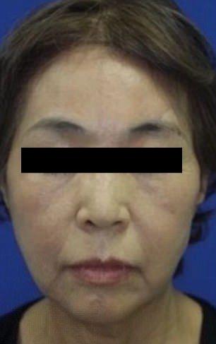 【閲覧注意】紡績機に巻き込まれて頭皮が半分以上剥がれた日本人女性。。。(画像)・2枚目