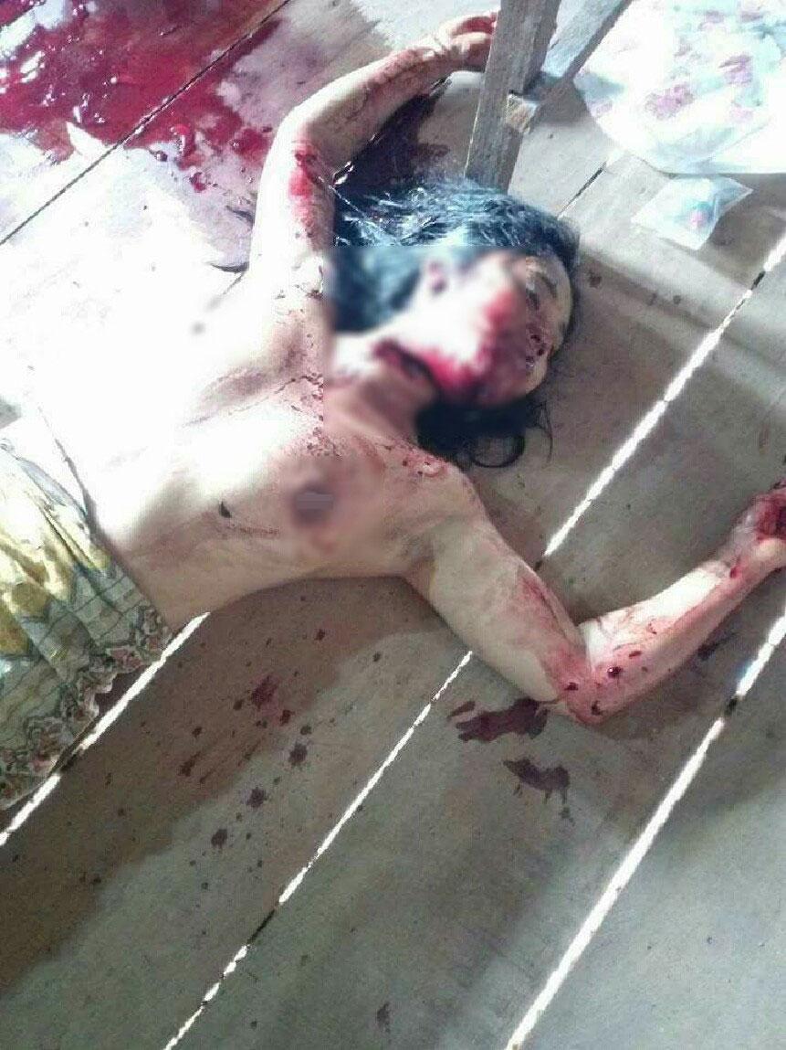 【閲覧注意】夫の留守中にレイプされ喉を切り裂かれた女性がコチラ。(画像)・3枚目