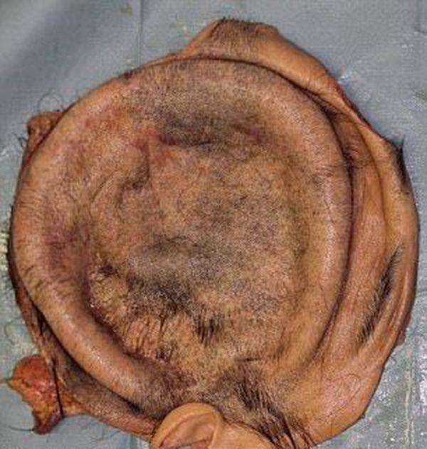 【閲覧注意】紡績機に巻き込まれて頭皮が半分以上剥がれた日本人女性。。。(画像)・3枚目