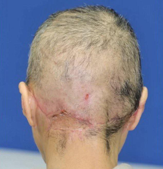 【閲覧注意】紡績機に巻き込まれて頭皮が半分以上剥がれた日本人女性。。。(画像)・4枚目