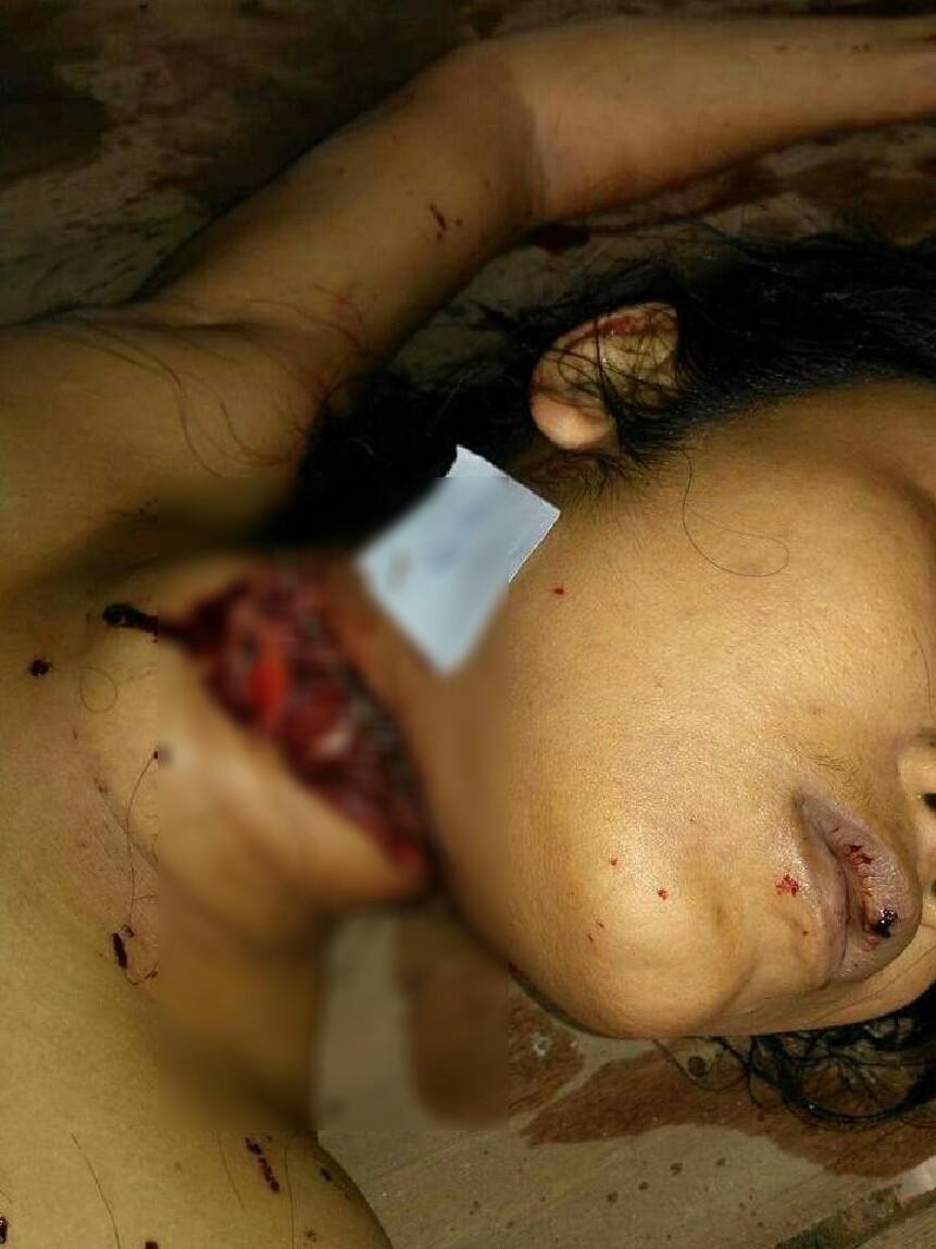 【閲覧注意】夫の留守中にレイプされ喉を切り裂かれた女性がコチラ。(画像)・5枚目
