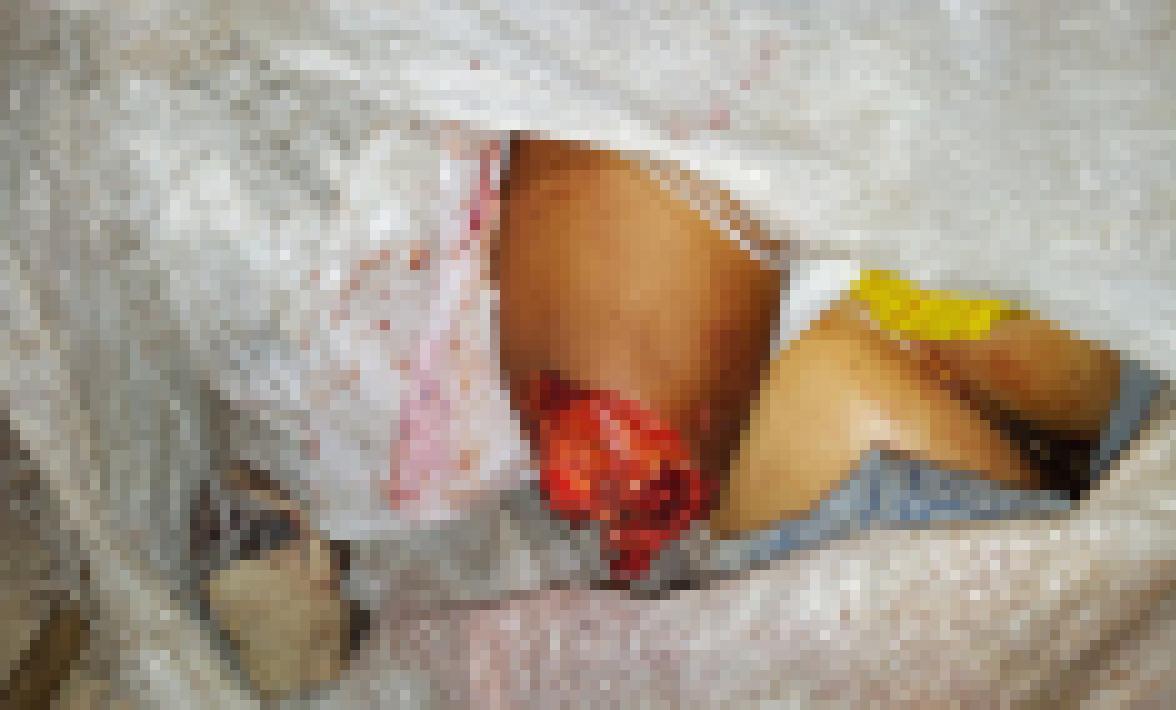 【閲覧注意】袋詰めされた女性2人のバラバラ遺体がグロ杉て泣いた。(画像)・7枚目