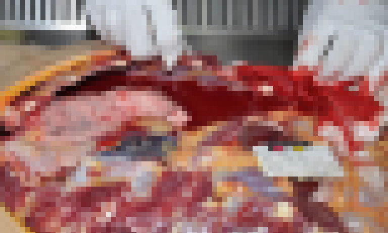【閲覧注意】心臓を一突きにされ死亡した女性の検死画像、、、エッッッッッッッッッッッ!(画像9枚)・7枚目