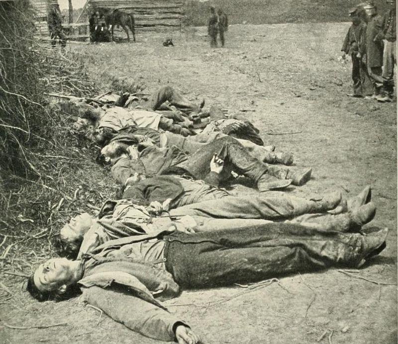 【閲覧注意】「南北戦争」で撮影された捕虜の写真、ISISよりヒドイ・・・(画像)・10枚目