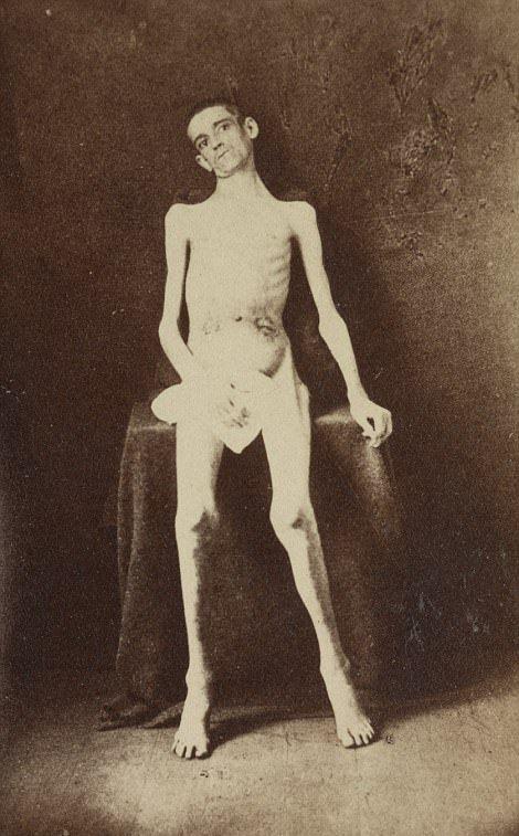 【閲覧注意】「南北戦争」で撮影された捕虜の写真、ISISよりヒドイ・・・(画像)・1枚目