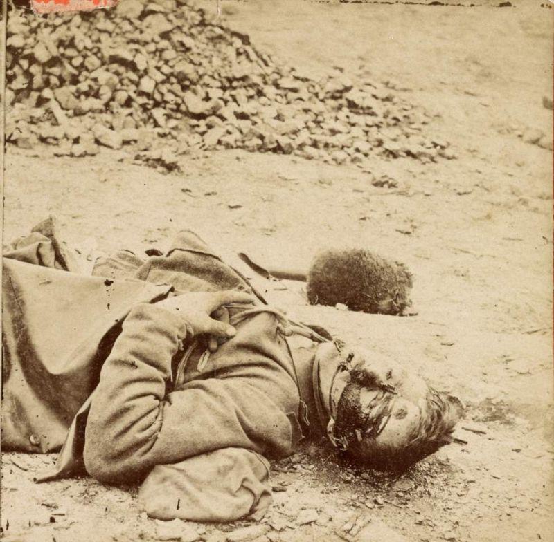 【閲覧注意】「南北戦争」で撮影された捕虜の写真、ISISよりヒドイ・・・(画像)・16枚目