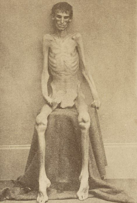 【閲覧注意】「南北戦争」で撮影された捕虜の写真、ISISよりヒドイ・・・(画像)・2枚目