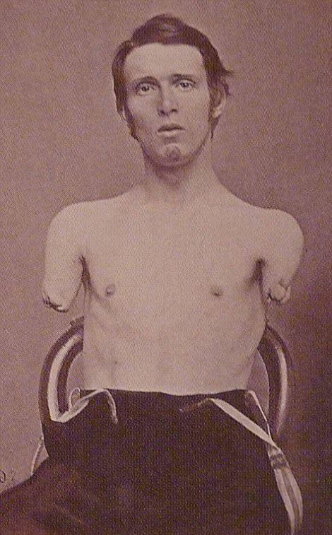 【閲覧注意】「南北戦争」で撮影された捕虜の写真、ISISよりヒドイ・・・(画像)・3枚目