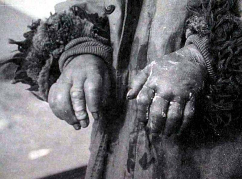 【閲覧注意】第二次世界大戦で行われた「731部隊」の悪行。(画像)・6枚目