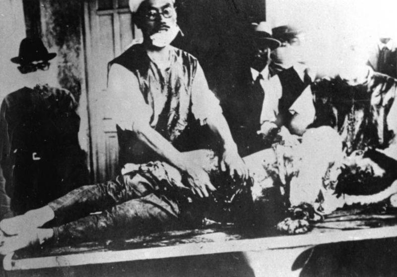 【閲覧注意】第二次世界大戦で行われた「731部隊」の悪行。(画像)・8枚目