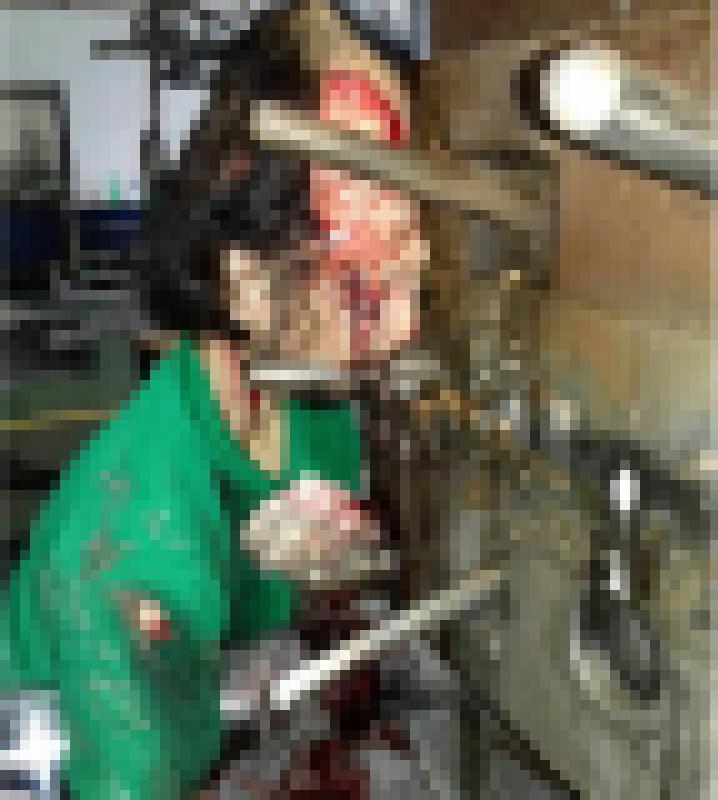 【超閲覧注意】金型製造機で頭部をプレスされた人・・・ヴォエ(画像)・1枚目