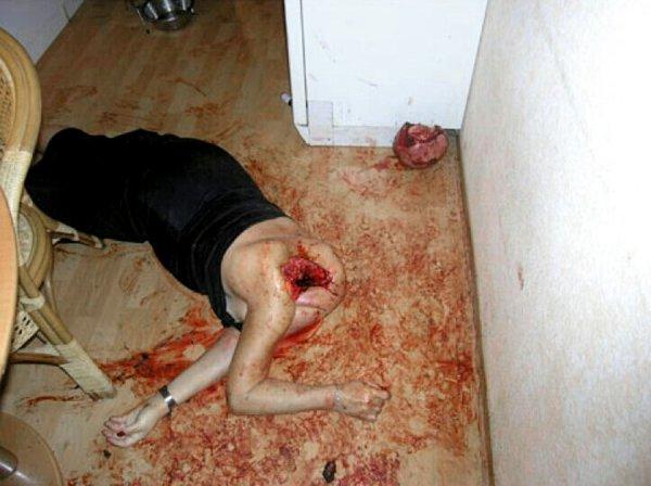 【閲覧注意】飼い犬に顔面を食べられた人が発見された・・・(画像)・2枚目