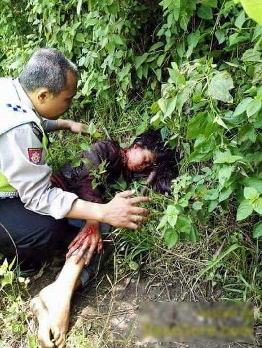 【閲覧注意】首を半分切られ生きた状態で発見された女性を救出する。(画像)・1枚目