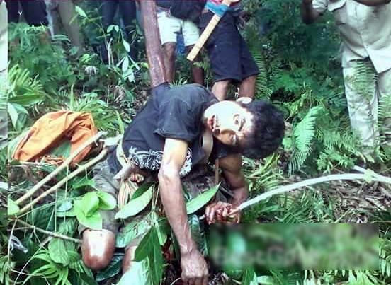 【閲覧注意】森でこの遺体を発見したらトラウマになるわ。。(画像)・1枚目