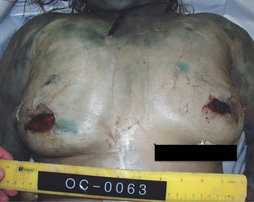 【閲覧注意】レイプ殺人の被害者のマンコから出てきたモノ・・・(画像)・2枚目