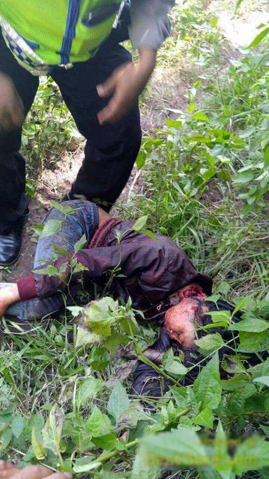 【閲覧注意】首を半分切られ生きた状態で発見された女性を救出する。(画像)・2枚目