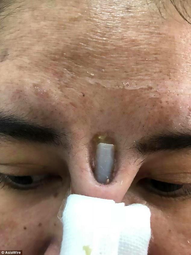 【衝撃】悪徳整形外科で「鼻」をイジった女性の末路。。(画像)・2枚目
