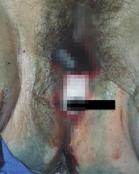 【閲覧注意】レイプ殺人の被害者のマンコから出てきたモノ・・・(画像)・3枚目