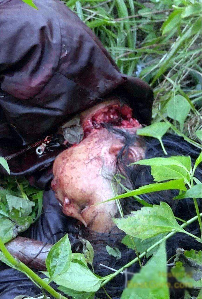 【閲覧注意】首を半分切られ生きた状態で発見された女性を救出する。(画像)・3枚目
