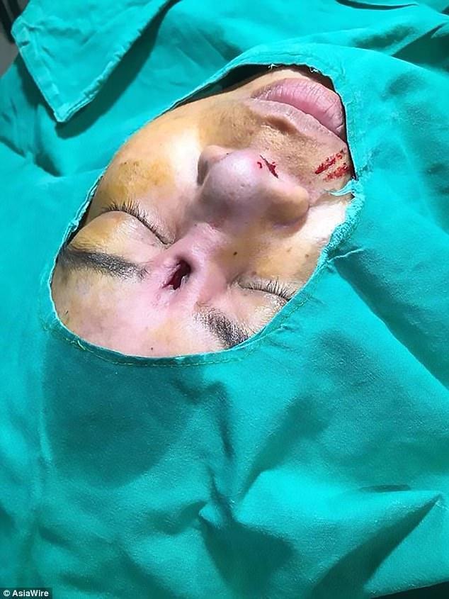 【衝撃】悪徳整形外科で「鼻」をイジった女性の末路。。(画像)・3枚目