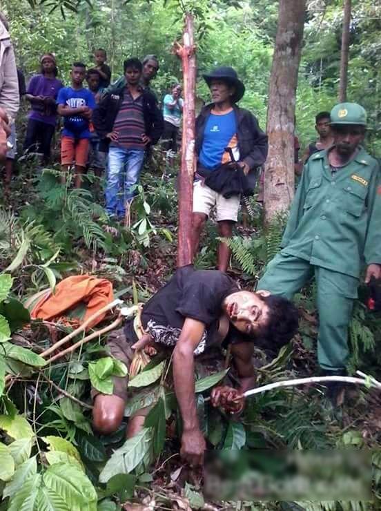 【閲覧注意】森でこの遺体を発見したらトラウマになるわ。。(画像)・4枚目