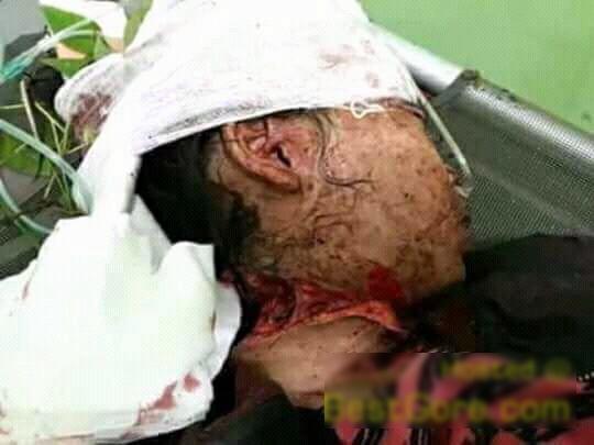 【閲覧注意】首を半分切られ生きた状態で発見された女性を救出する。(画像)・5枚目