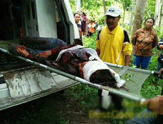 【閲覧注意】首を半分切られ生きた状態で発見された女性を救出する。(画像)・6枚目