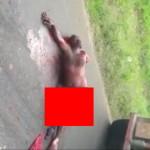 【閲覧注意】事故に遭った男性の右手足が犠牲になる。。(動画)
