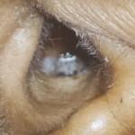【衝撃】女性の耳の中で覗くアイツがヤバイ・・・(動画)