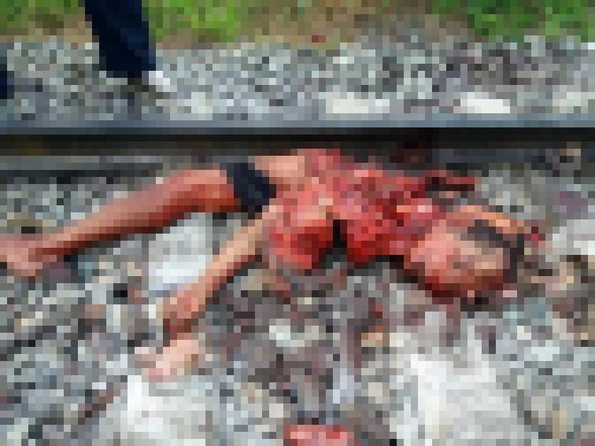 【超閲覧注意】列車に轢かれた人、色々部位が足りない・・・(画像)・1枚目