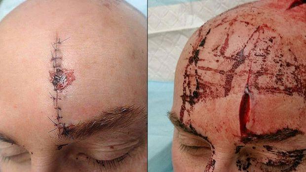 """【閲覧注意】日本の """" 刀 """" で頭を切られた人。(画像あり)・1枚目"""
