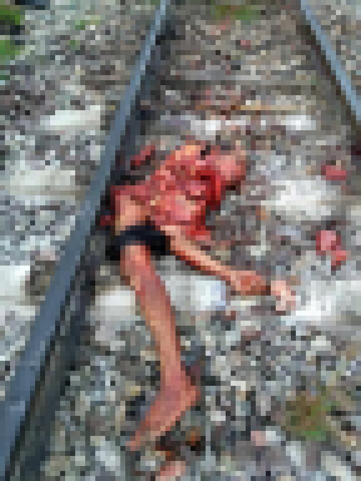 【超閲覧注意】列車に轢かれた人、色々部位が足りない・・・(画像)・2枚目