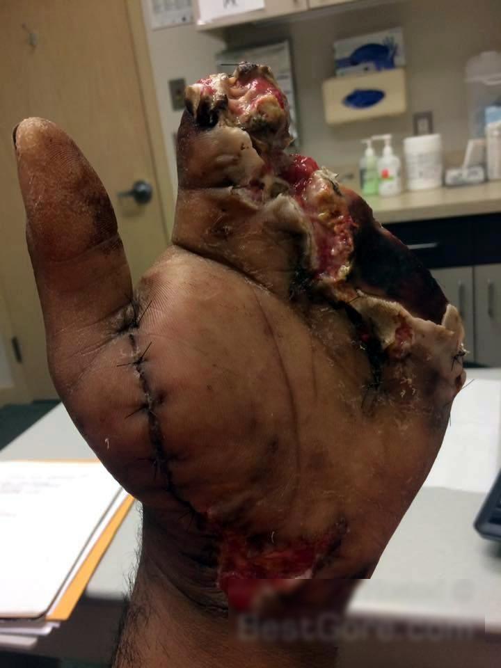 【閲覧注意】職場でプレスした人の「手」をご覧ください。。(画像)・4枚目