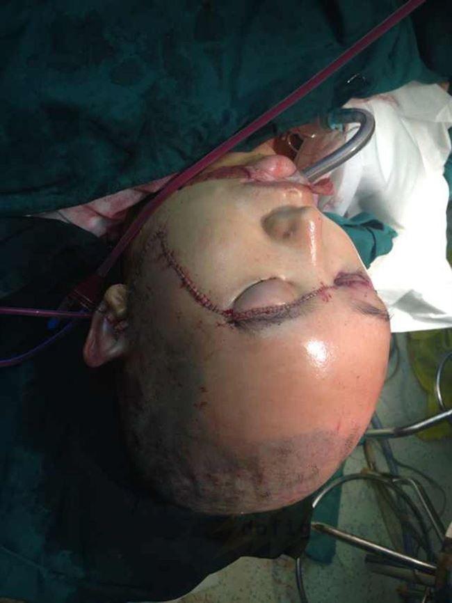 【閲覧注意】頭の皮が全てズル剥けた女性をご覧ください。。(画像)・11枚目