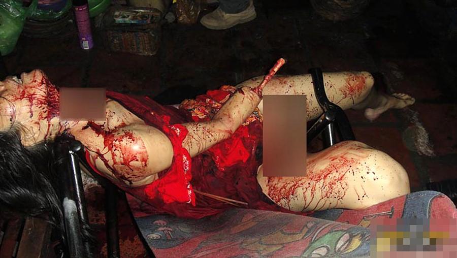 【閲覧注意】強盗に襲われた女性、手首まで盗まれる・・・(画像)・2枚目
